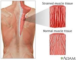 Strained Muscle Tissue