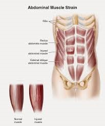 Abdominal Muscle Strain